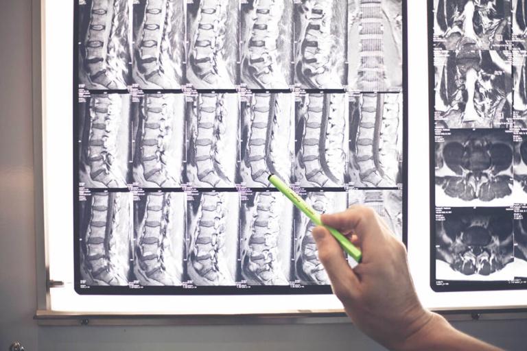 Orthopädie Wannsee - Harbrecht - Leistungen - Wirbelsäulentherapie